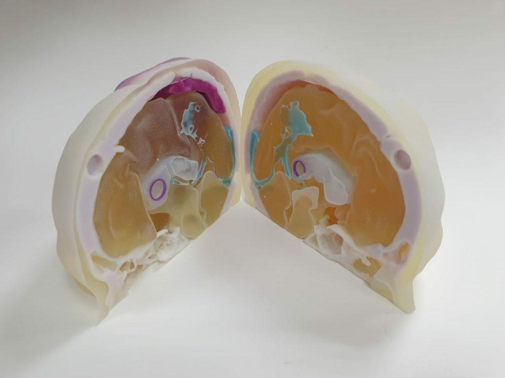 מודל אנטומי המדמה מוח אנושי תוכנן והודפס בתלת-מימד
