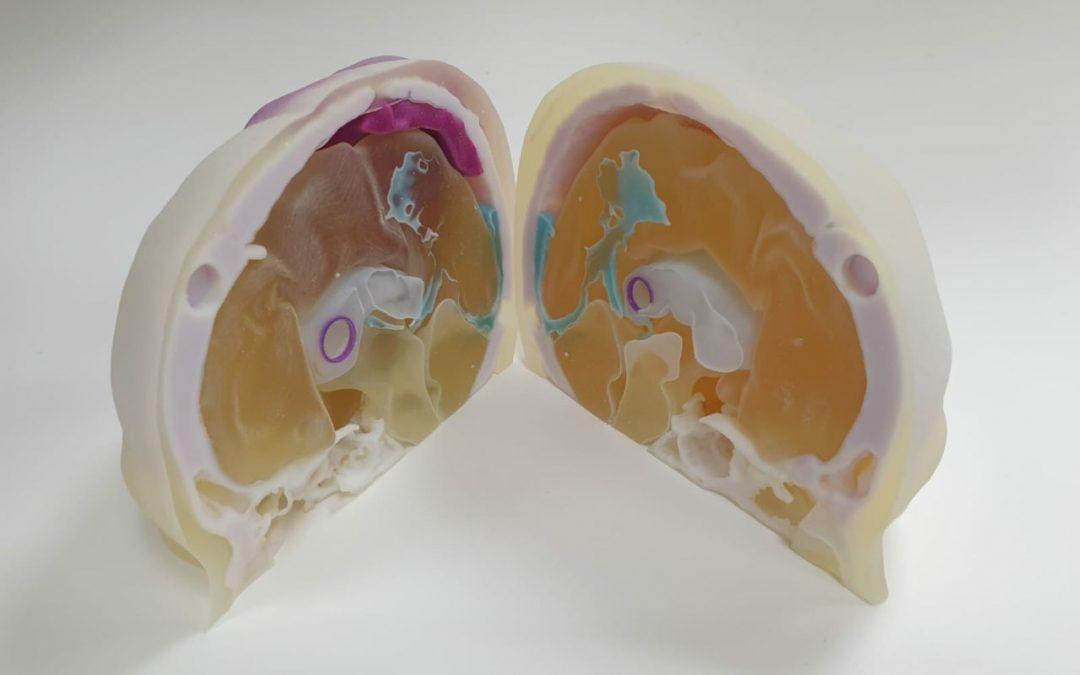 ריאליזם חדשני: תכנון מודל אנטומי תלת-ממדי המדמה מוח אנושי